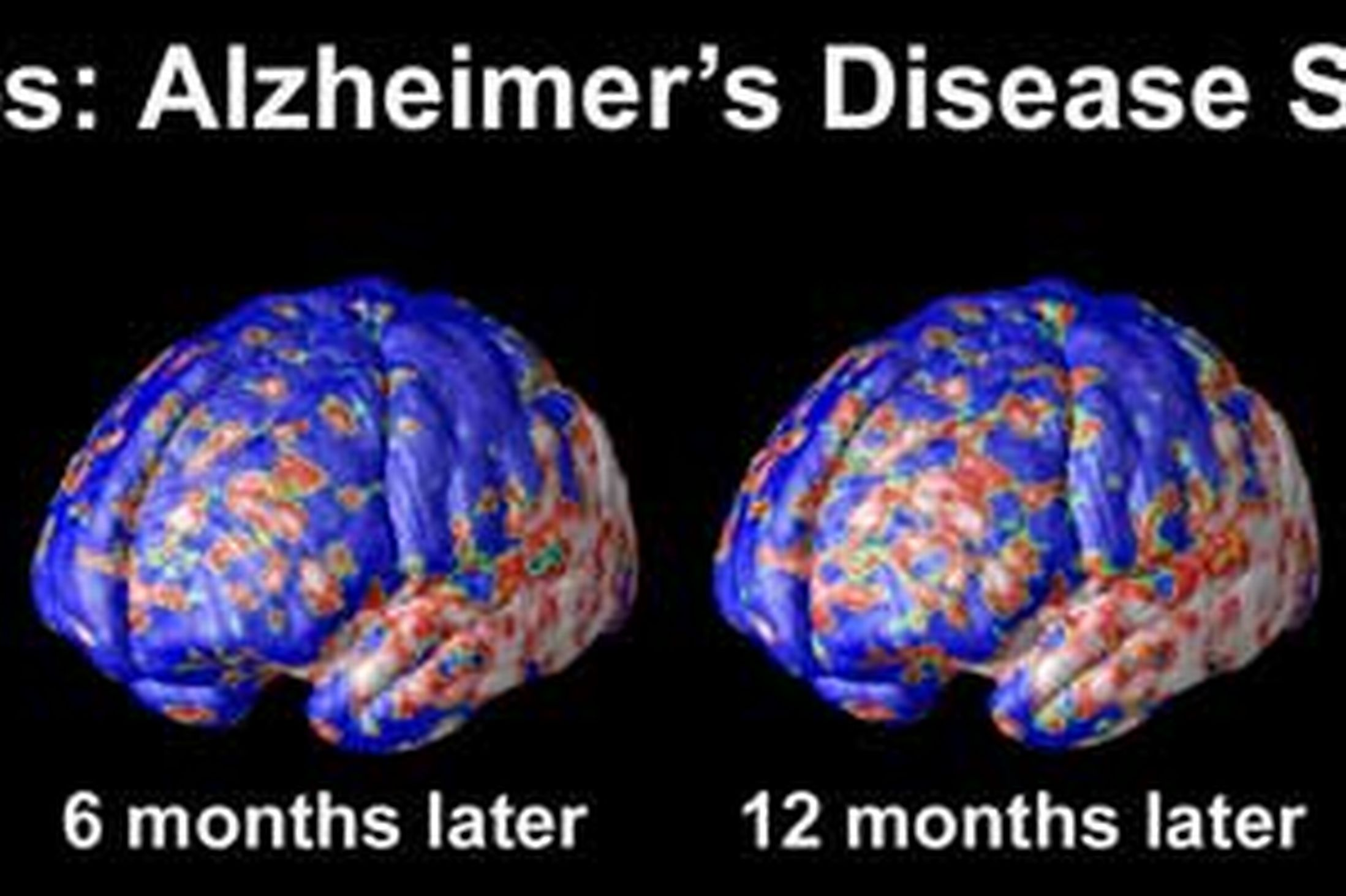 research paper on alzheimer