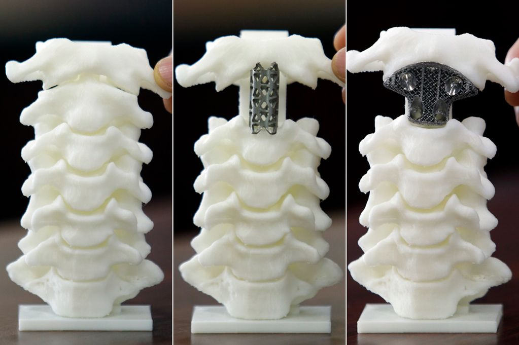 MAIN--3D-Printed-Spine