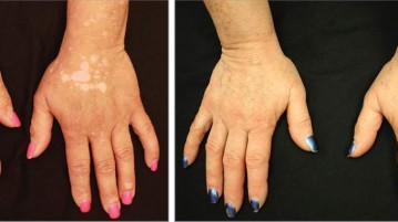 Rheumatoid arthritis drug shows promise in treating vitiligo