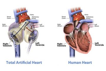 512px-Graphic_of_the_SynCardia_temporary_Total_Artificial_Heart_beside_a_human_heart