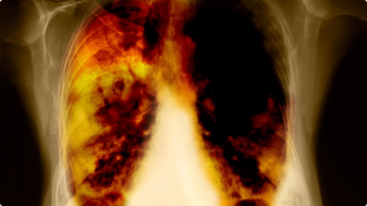 Expert calls for early lung cancer screening in the UK